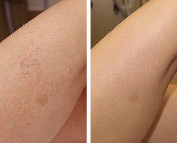 laser for thread veins